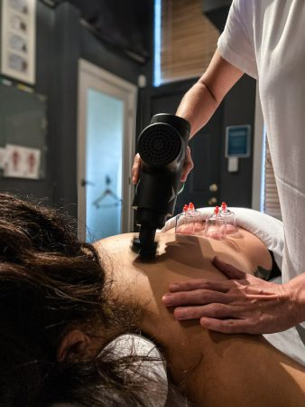 cupping massage Integrative Bodywork in St. Pete